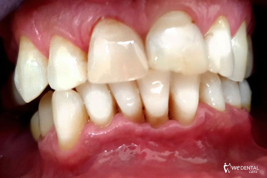 Frattura dentale coronale, dopo l'intervento