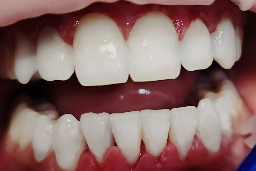 Come rifare i colletti dentali