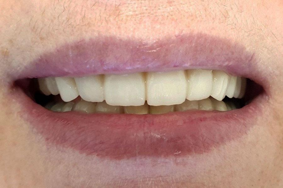 Malocclusione grave e faccette dentali