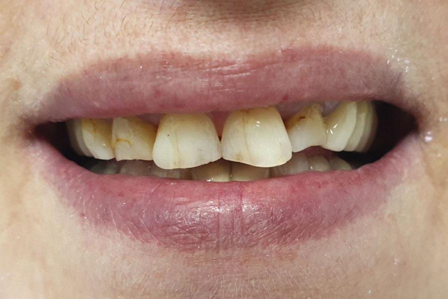 Malocclusione dentale grave