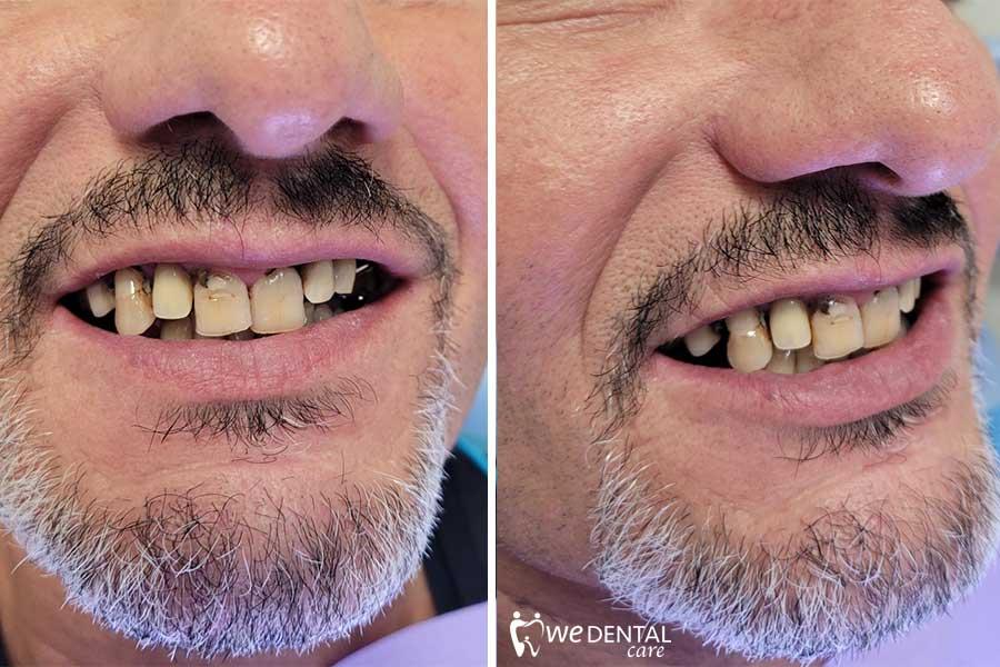 Parodontite con malocclusione
