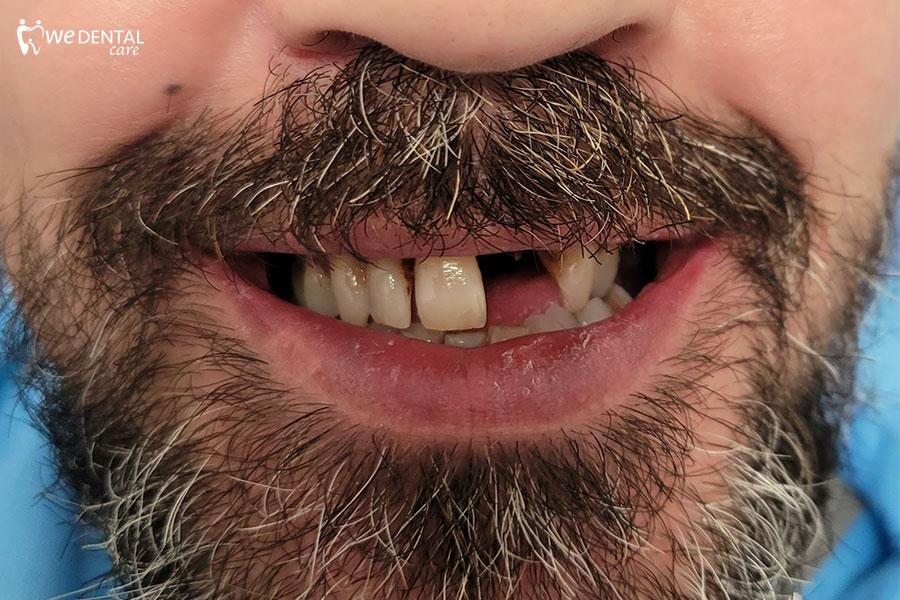 Fumo e parodontite: come intervenire