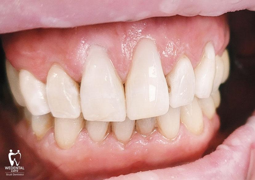 Ricostruzione dentale estetica e sbiancamento